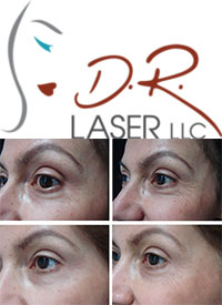 D.R. Laser LLC