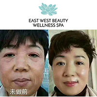 East West Beauty Wellness Spa