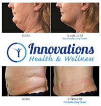 Innovations Health and Wellness