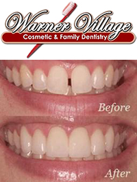 Warner Village Cosmetic & Family Dentistry